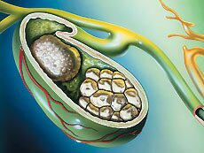 Народное лечение желчного пузыря