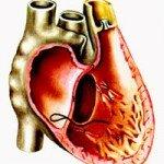 сердечная астма лечение
