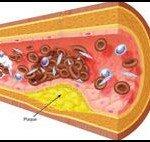 Народное лечение атеросклероза