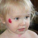 лечение стрептодермии у ребенка