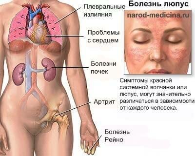заболевание люпус
