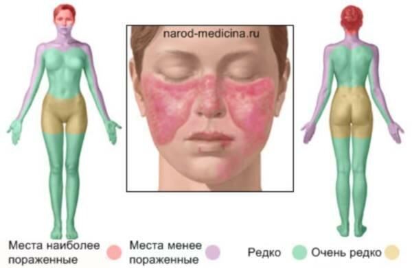 Болезнь люпус