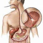Рак желудка симптомы и лечение
