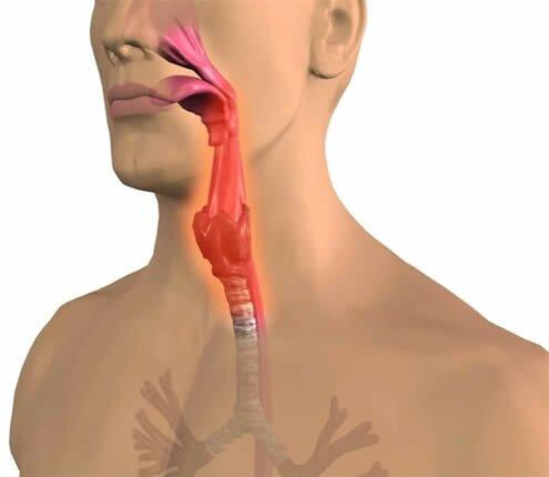 тонзилит симптомы ком в горле:
