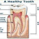 Воспаление надкостницы зуба