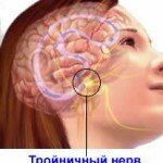 Тройничный нерв лечение народными средствами