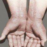 Народное лечение нейродермита