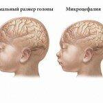 Микроцефалия у детей