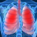 Альвеолит фиброзирующий