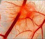 Артериальная гиперемия