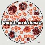 Нейтрофилы сегментоядерные