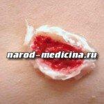 Туляремия симптомы и лечение