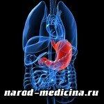 Симптомы и лечение гастрита