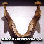 Лечение привычных вывихов нижней челюсти