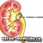 Лекарства при мочекаменной болезни