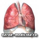 Что такое эмфизема лёгких