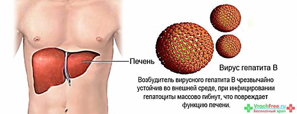 Вирусный гепатит В лечение